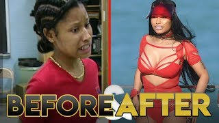 NICKI MINAJ | Before & After Transformation ( Plastic Surgery, Makeup & More )