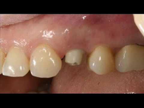 Вопрос цены на имплантацию зубов в г Сумы,Имплантация зубов,Цены на зубные импланты в Сумах.Отзывы