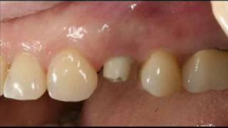 Вопрос цены на имплантацию зубов в г Сумы,Имплантация зубов,Цены на зубные импланты в Сумах.Отзывы(, 2013-08-05T14:46:35.000Z)