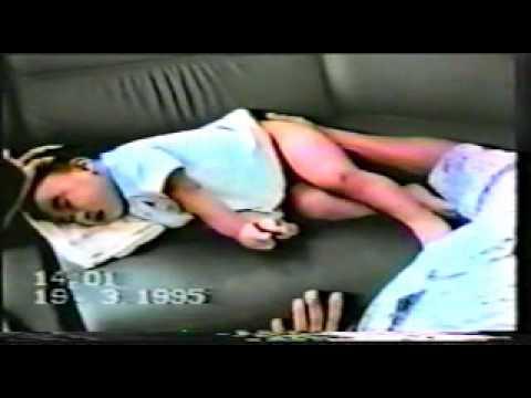Pediatrics Seizure