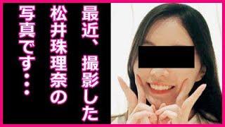 松井珠理奈 現在の休養中の写真公開に衝撃!病気と精神の状態が判明しファンの涙がとまらない