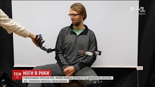 Японські винахідники створили роботизовані кінцівки для тих, кому ампутували руки