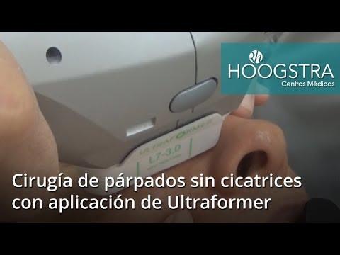 Cirugía de párpados sin cicatrices con aplicación de Ultraformer (17133)