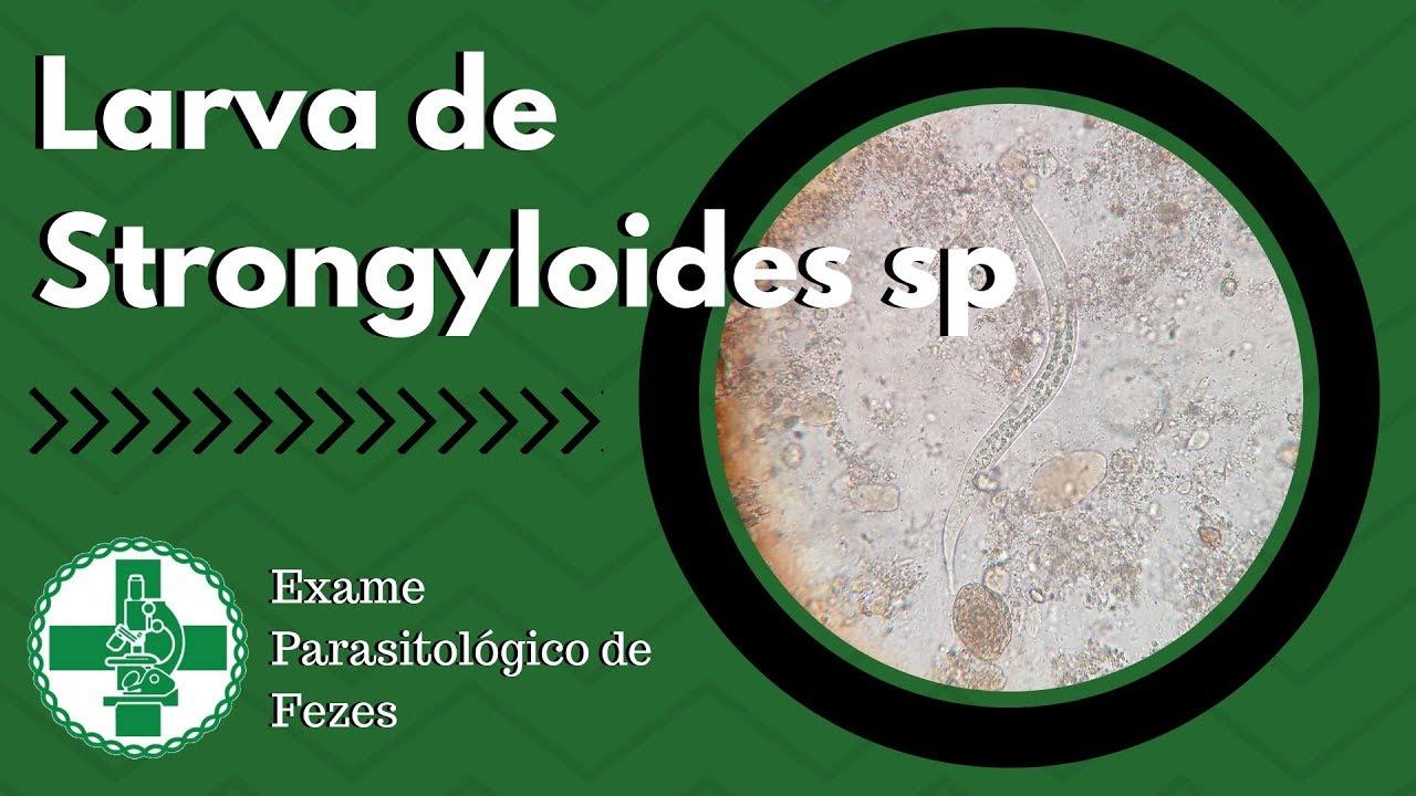 Strongyloidosis, ahol elterjedt A Magyarországon előforduló féregfertőzések