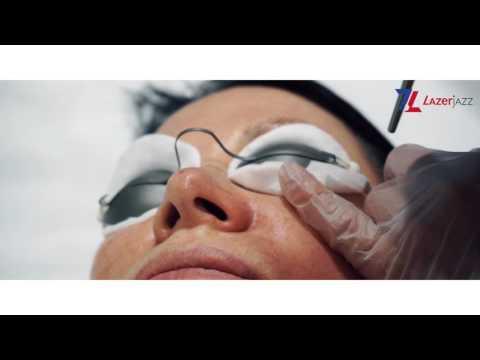 Лазерное удаление сосудов на лице в Клинике LazerJazz. Лечение розацеа. Лечение купероза.