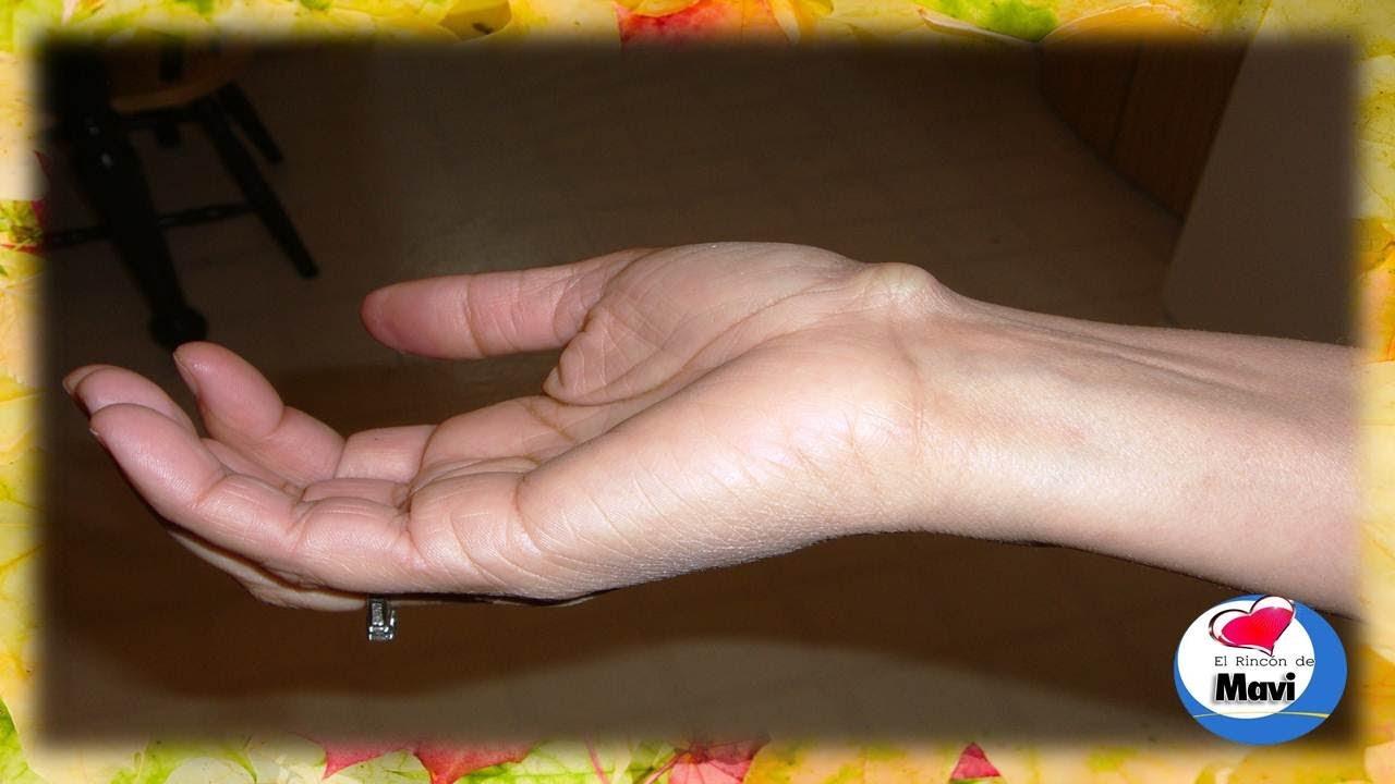 Efektivne лікування del hongo en los pies