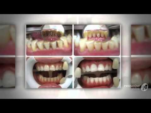 как сделать отбеливание зубов в домашних условиях