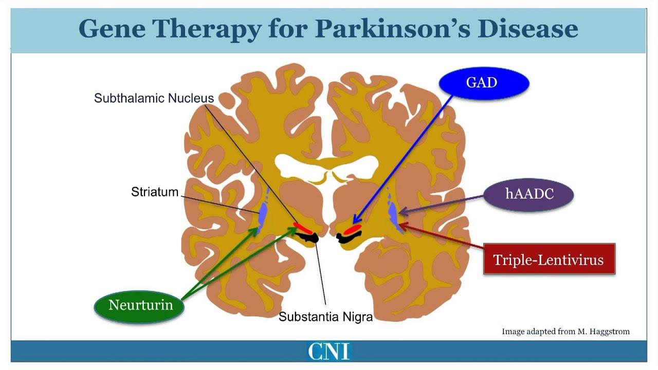 Parkinson's Disease Medications - Pictures