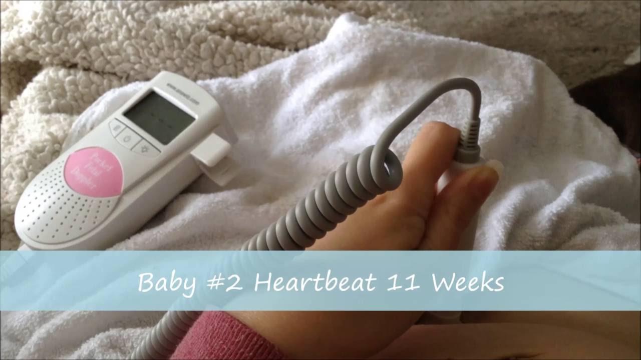 Baby S Heartbeat At 11 Weeks Pregnant Sonoline B Fetal Doppler