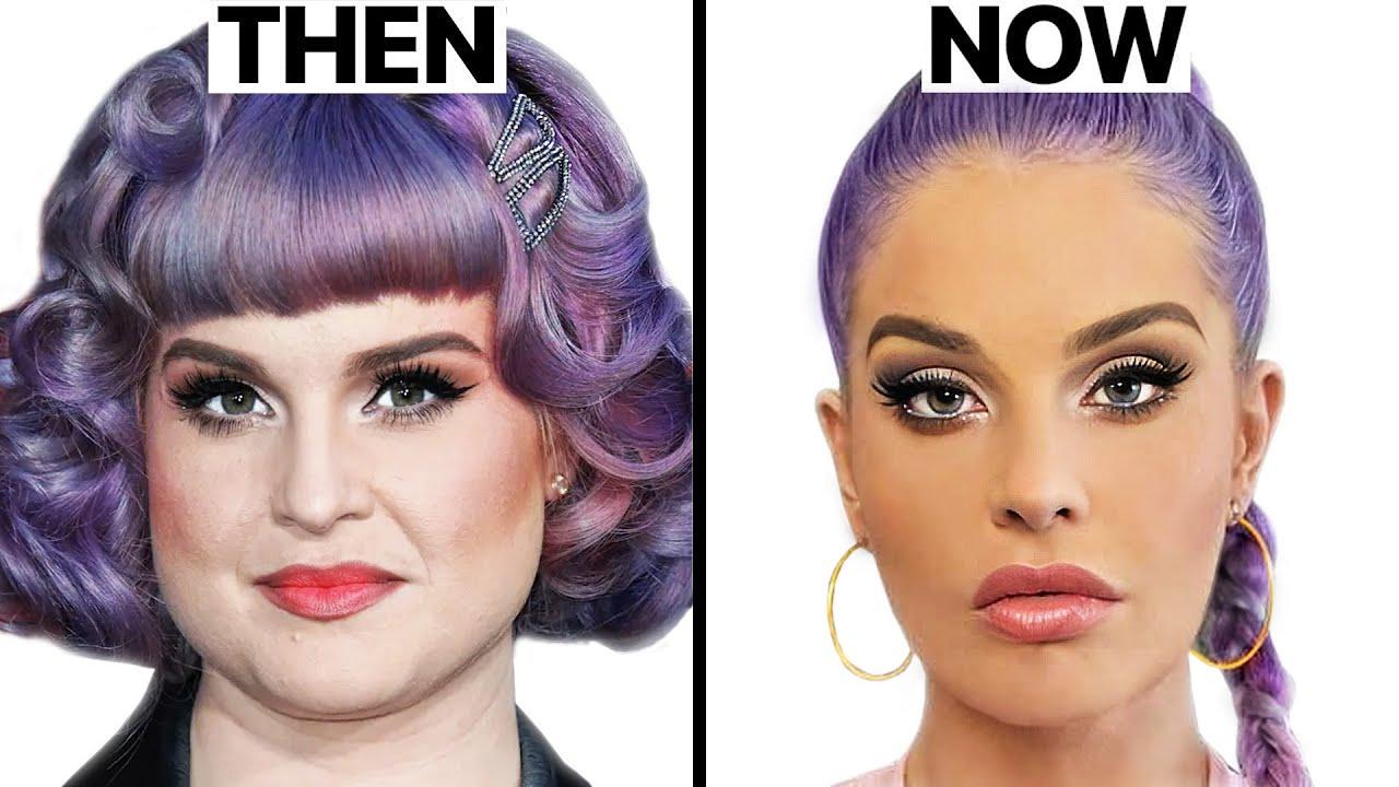 Kelly Osbourne Plastic Surgery - Surgeon Reacts