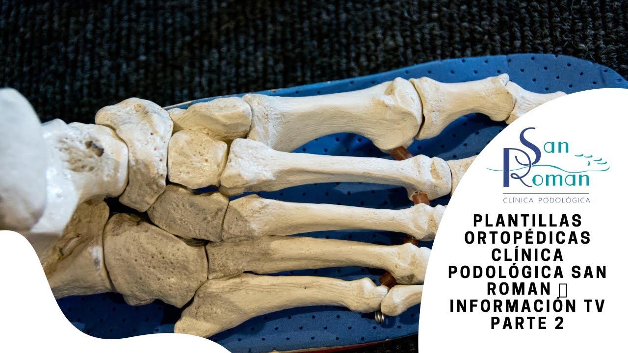 Plantillas ortopédicas - Clínica Podológica San Román 👣 Información ...