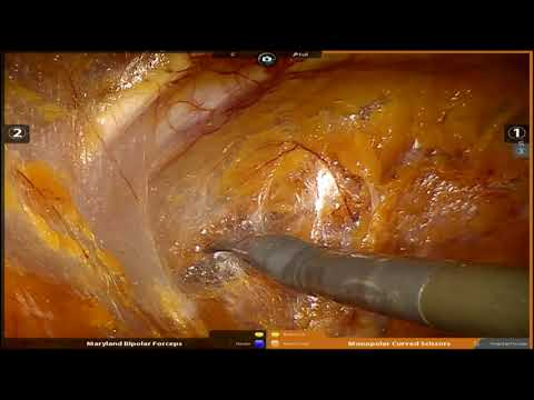 Robotic Radical Prostatectomy in 24 January 2018 Full Length