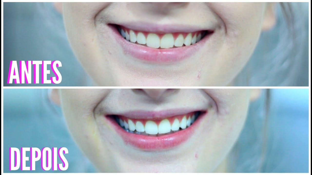 Dentes Brancos Em 2 Minutos Receita Caseira Juliaejulhotododia