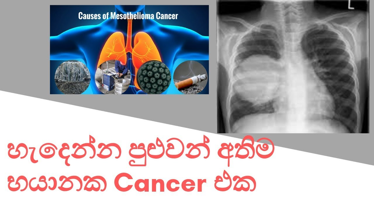 Introduction to mesothelioma cancer