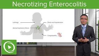 Necrotizing Enterocolitis Surgery Lecturio