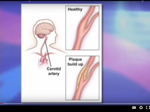 Risks and Benefits of Carotid Stenting