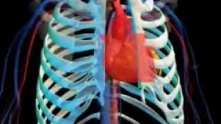 Coronary Bypass Surgery 3d animation