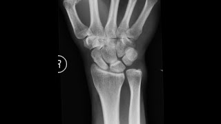 TFCC TEAR REPAIR ULNAR OSTEOTOMY SURGERY FINAL OUTCOME