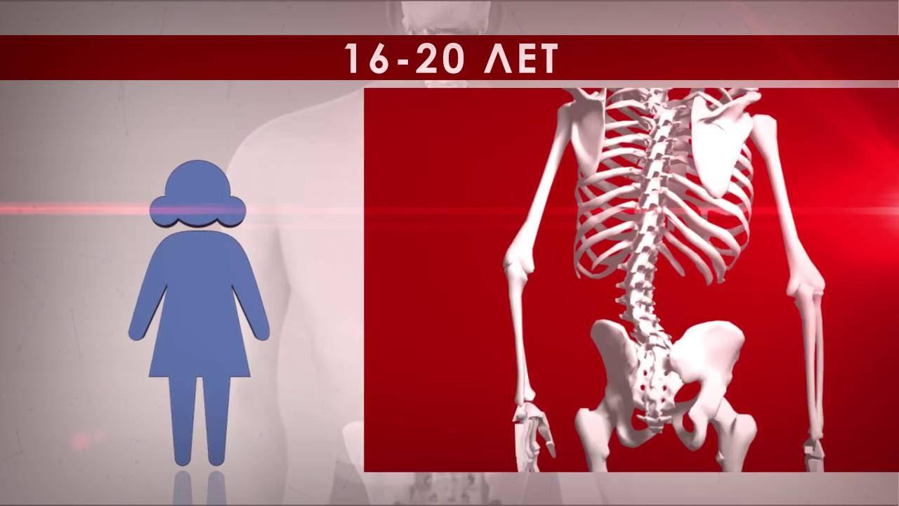 Кифоз 3 степень лечение