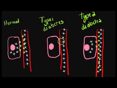 Glucose metabolism in type 1 and type 2 diabetes