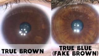 Eye Color Change On Raw Food Diet - Fake Brown Vs. True Brown