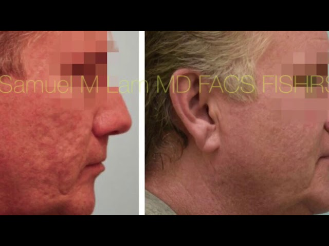 Dallas Acne Scarring Silicone Correction Testimonial w/Photos