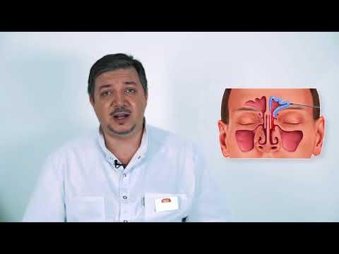 Болит лобная пазуха при насморке