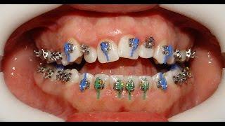 Orthodontic Treatment of Anterior Open Bite - Mahmoud 22yrs