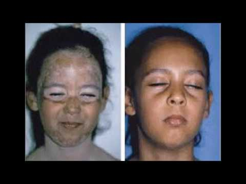 Treatment Vitiligo -Treating Vitiligo With Coconut Oil