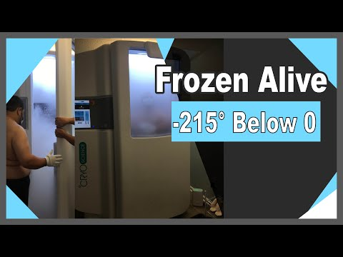 Trying cryotherapy Frozen to 215° below zero