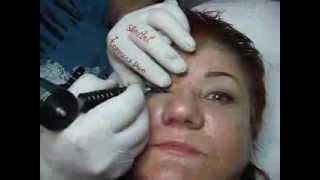 Tatuaj contur ochi make-up artist Zarescu Dan Clinica Slimart machiaj semipermanent ochi tatuaj