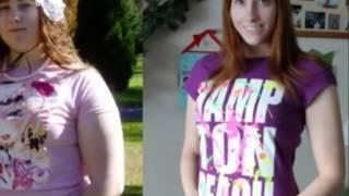 До и после похудения. Часть 3.