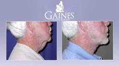 Male Direct Neck Lift - Gainesville - Gaines Plastic Surgery