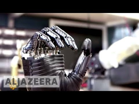 Bionic arm: A pioneering union between man and machine - The Cure