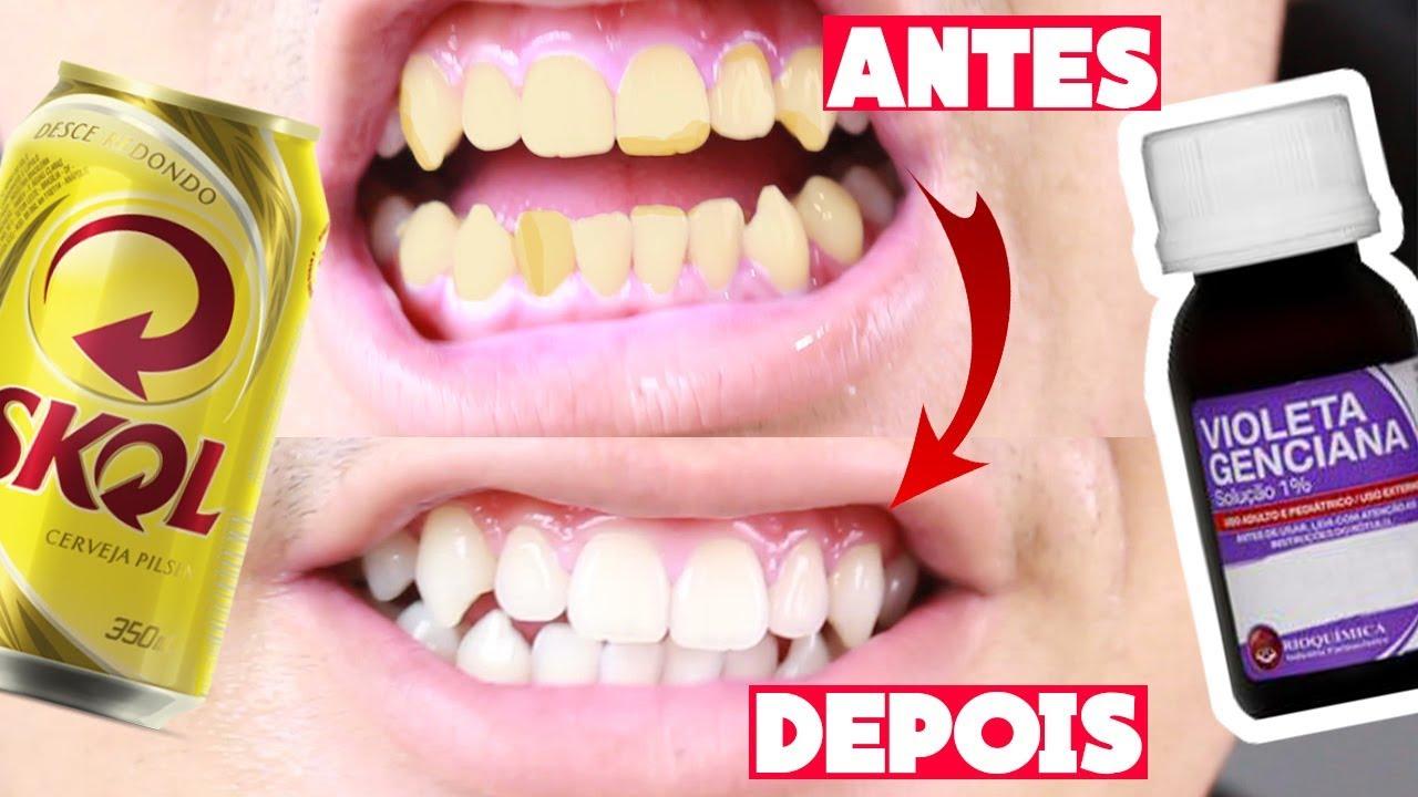 Como Clarear Os Dentes Em Casa Sem Gastar Testando Receitas