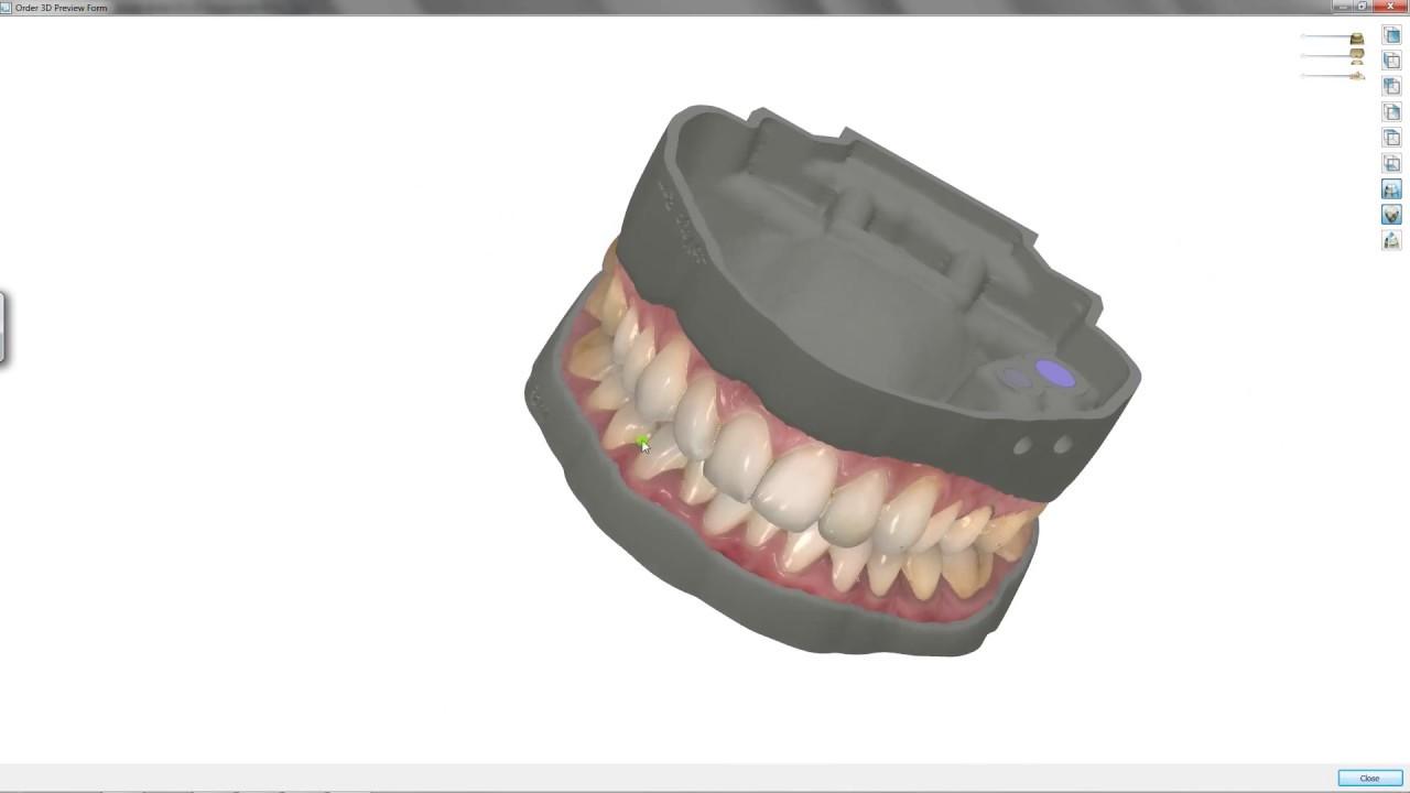 3Shape Communicate:Trios Color Scan & Digital Model by LabMagic 3D CAD