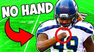 THIS NFL PLAYER ONLY HAS ONE HAND..