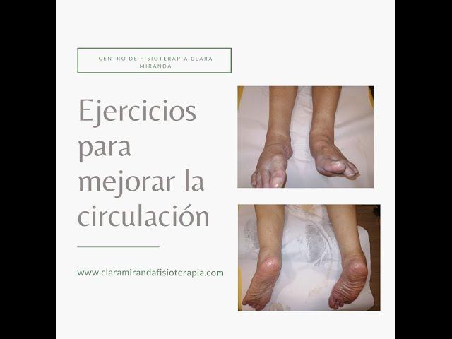 Ejercicios circulatorios para edemas de miembro inferior