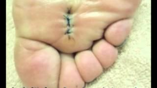 ウィルス性 イボ 摘出+注射療法(足底部)東京銀座スキンケアクリニック