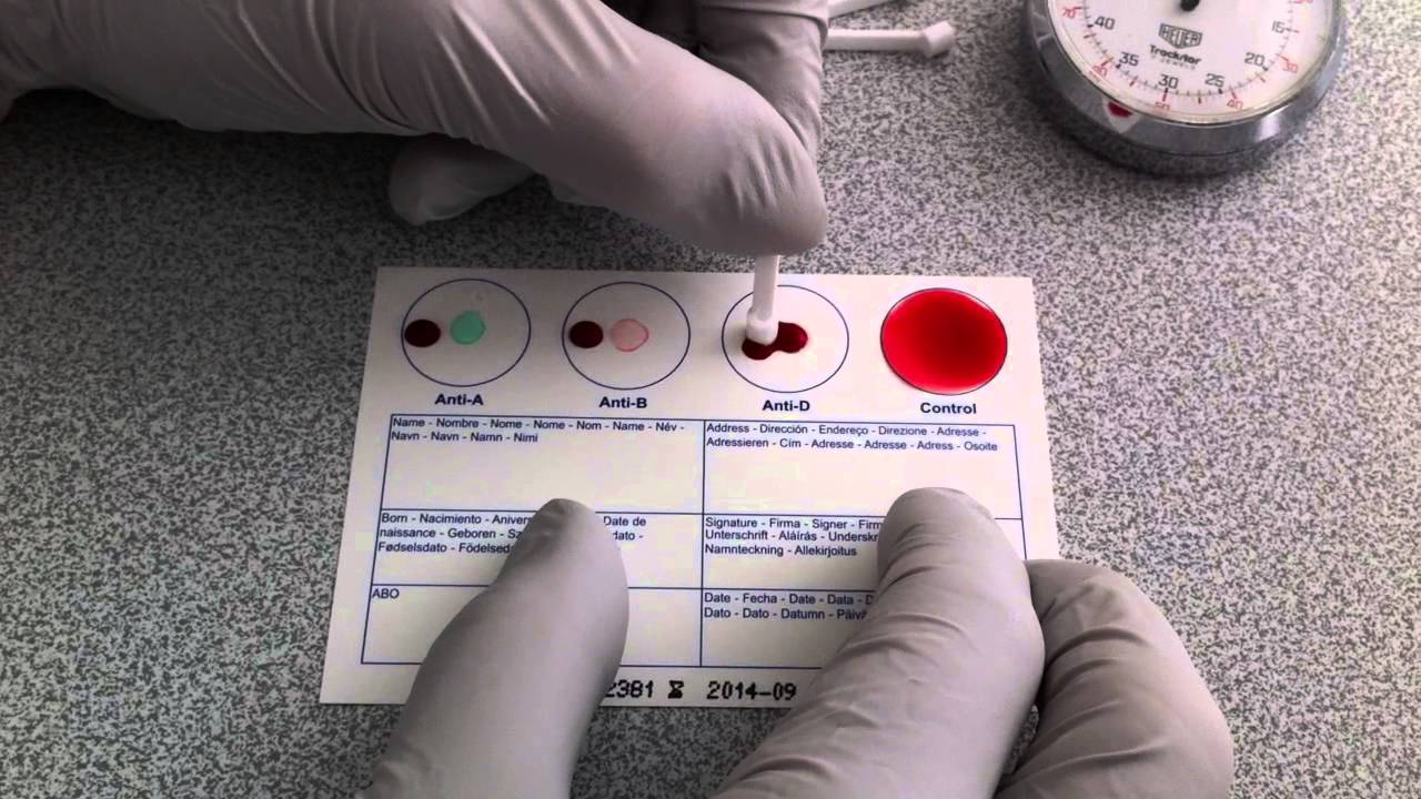 blood group checking procedure