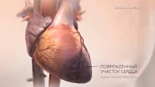 инфаркт: жить или не жить? В Ревде разработана программа экстренной помощи