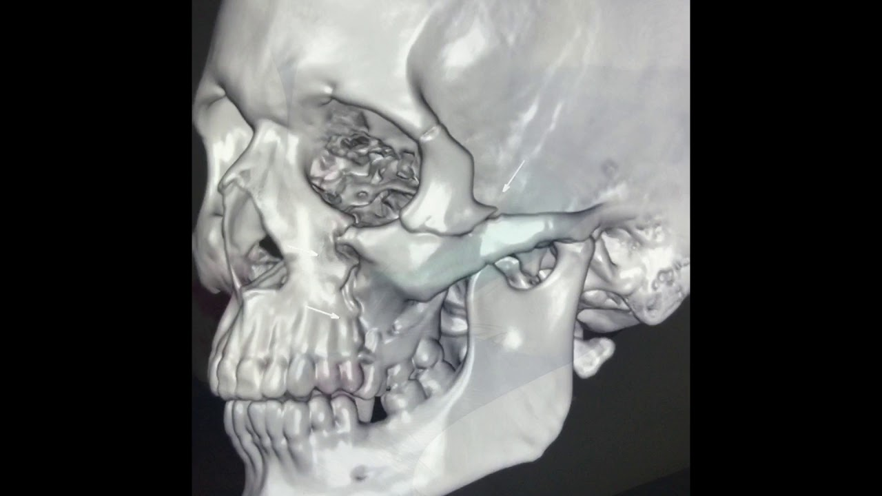 Zygomatic Complex Fracture Gilles Temporal Technique For Arch