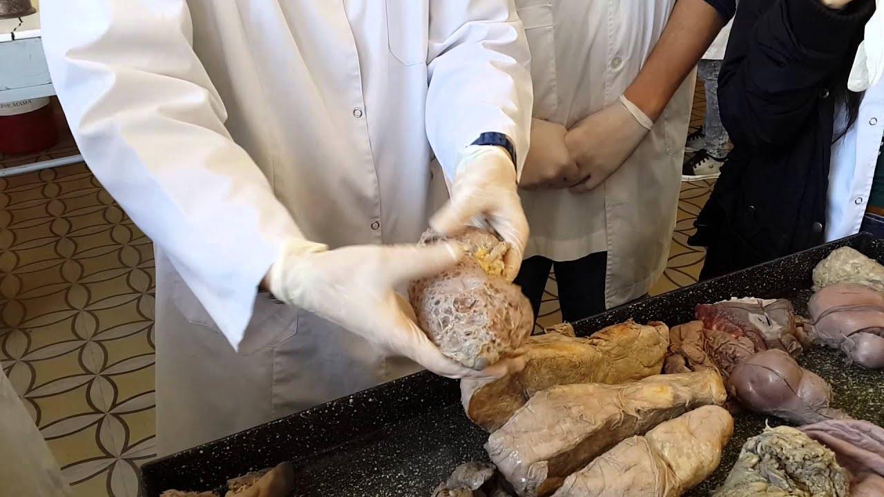 Riñón poliquistico Anatomía patológica - YouTube
