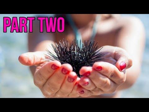 Colombia's Sea Urchin Spine Removal!  Procedure