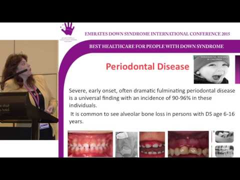 EDSIC 2015 Dental issues in Down syndrome