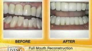 San Diego Living Interview with Dr. Paul Coleman - Cosmetic Dentistry Thumbnail