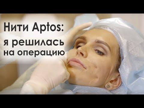 Нити Aptos: я решилась на операцию