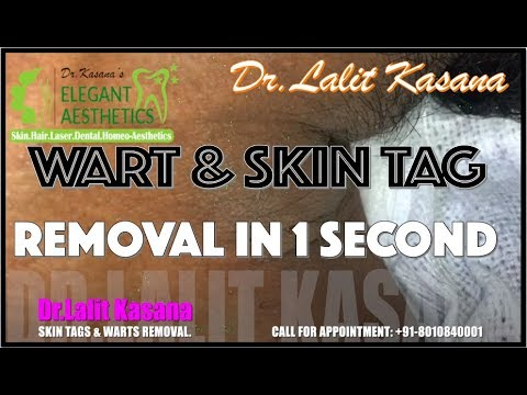 Skin tag wart removal | Lectures For Life | Online Video