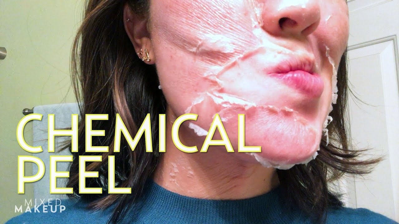 foto We Tried It: A Chemical Peel Without the Pain andPeeling