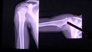 Osteochondroma or osteocartilaginous exostosis, tumor in CT scan by RadiologyTV